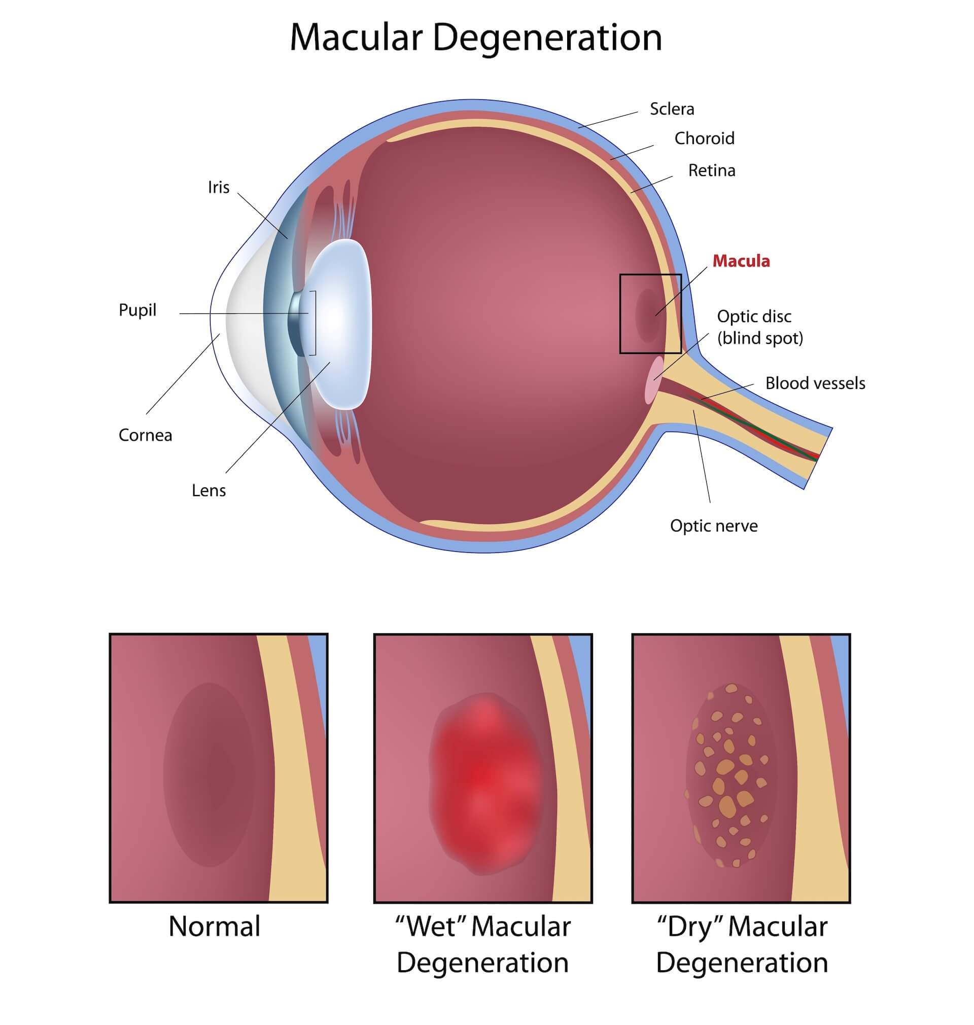 Diagram showing the effects of macular degeneration