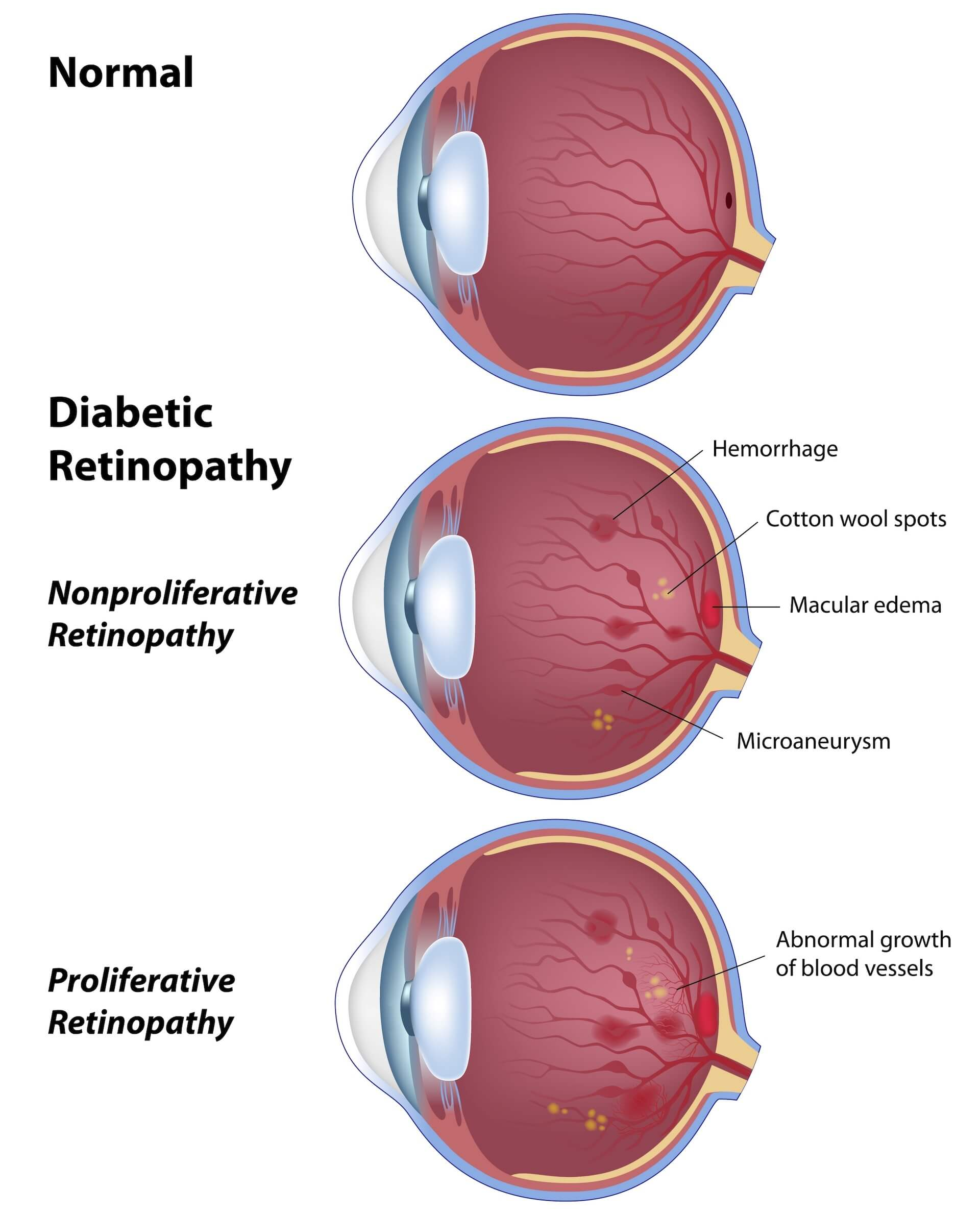 Diagram showing effects of diabetic retinopathy